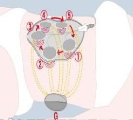回転式ポイント通電低周波治療器(AC BODY)