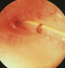子宮ファイバースコープ下選択的卵管通水治療