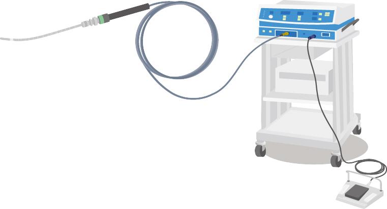 マイクロ波子宮内膜アブレーション(Microwave Endometrial Ablation,MEA)