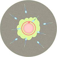 通常の体外受精(コンベンショナルIVF)~卵子に精子を振りかける方法