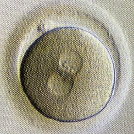採卵翌日朝、受精を確認