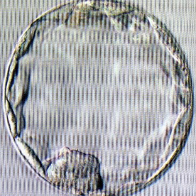 胚盤胞(培養5日目以降)