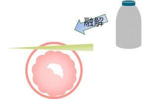 アシステッドハッチング(AHA:孵化補助法)を用いた移植法