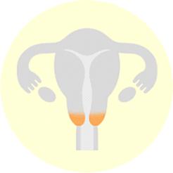 子宮頚がん
