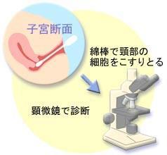 子宮頸部細胞診によってがん細胞を見つけます