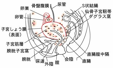 子宮内膜症の発生部位