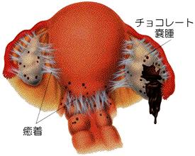 子宮内膜症卵巣チョコレート嚢腫