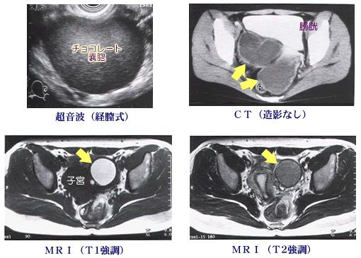 チョコレート嚢胞の画像診断